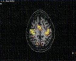 3t-mr-imaging-2